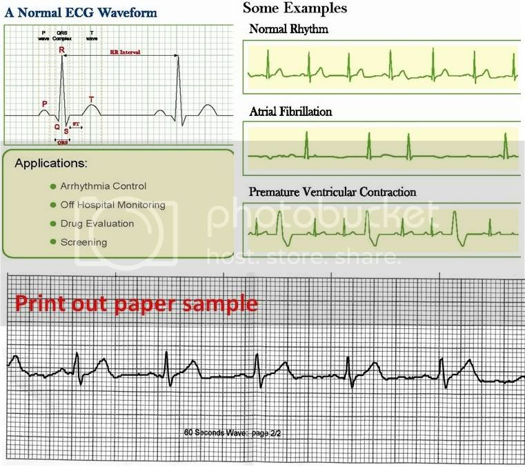 http://i694.photobucket.com/albums/vv302/MWMQAZ/ECG%20waveform_010911/ecgwaveform_010911.jpg